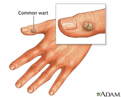 skin_problems_warts
